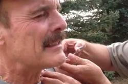 mouche de pêche dans la peau du cou