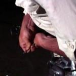 Cyril Chauquet (Mordu de la Pêche) a le dard d'une raie piqué dans la main, et le venin est très douloureux